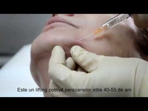 Lifting Facial Nechirurgical Lichid | Clinica UltraEstetic